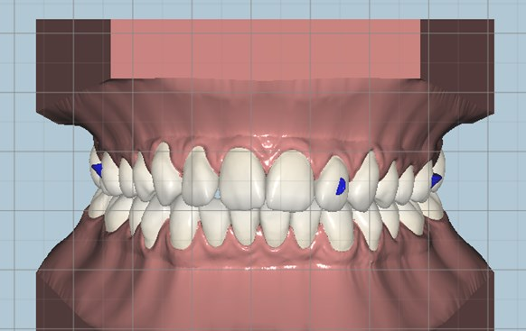 Cloud Orthodontic Software