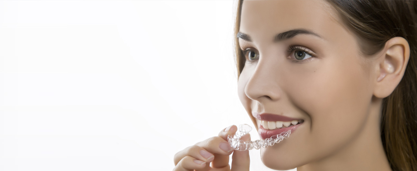 eXceed Aligners